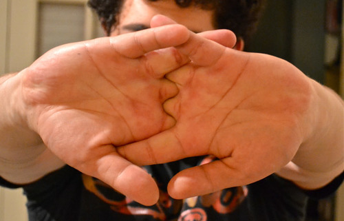 Big is cracking your knuckles bad for you